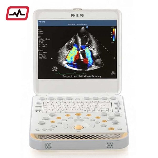 Philips-CX-50-Ultrasound