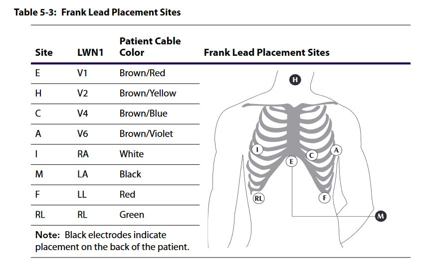 12 Lead Placement Guide With Diagram  Video