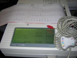 Burdick E550 Interpretive EKG